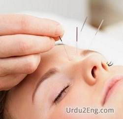 acupuncture Urdu Meaning
