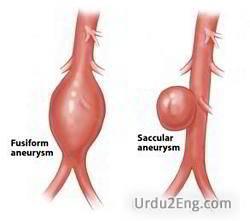 aneurysm Urdu Meaning