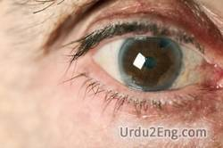 cataract Urdu Meaning