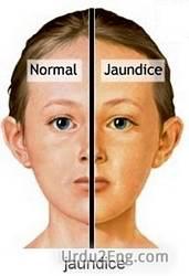 jaundice Urdu Meaning